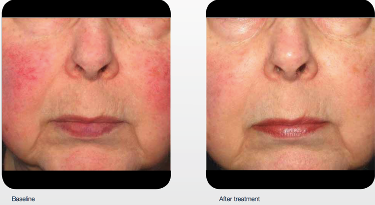 delray-dermatology-laser-services-cheeks