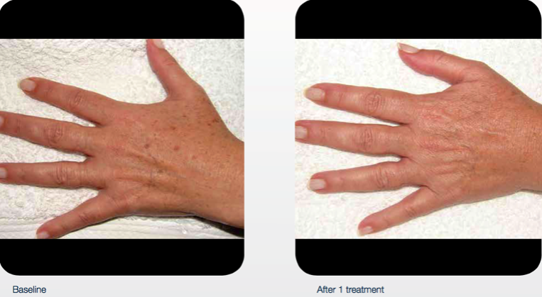 delray-dermatology-laser-services-hands
