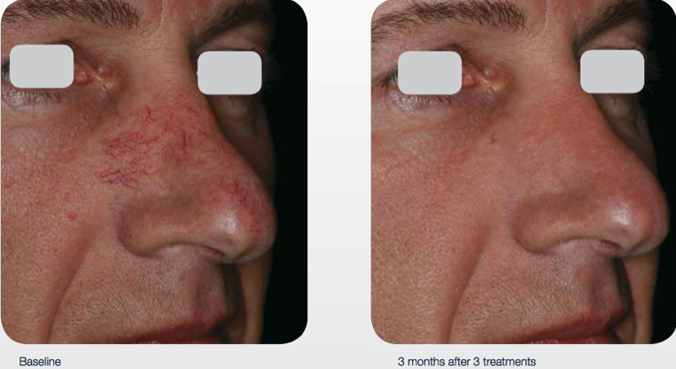 delray-dermatology-laser-services-nose